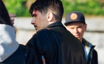 """Вокалист группы """"Время и стекло"""" получил травму на съемках"""