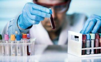 Стоит ли волноваться, если у вас завышен билирубин в крови?