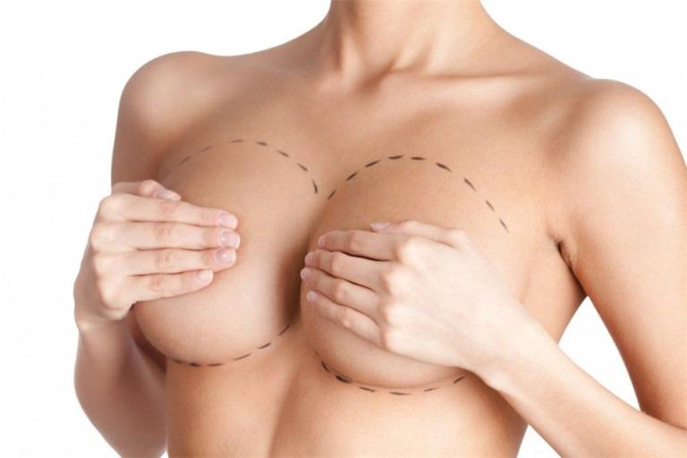 Что такое аугментационная пластика груди?
