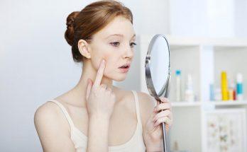 Появление капиллярной сеточки на лице: как с этим бороться