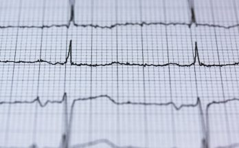 Не пейте это: кардиолог назвала самый опасный для сердца алкогольный напиток
