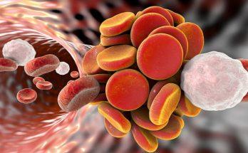 Может возникнуть в любом органе: медики назвали основные симптомы наличия тромба в организме