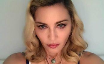 Неожиданно горячо: скандальная Мадонна ошеломила снимком топлес и на костылях