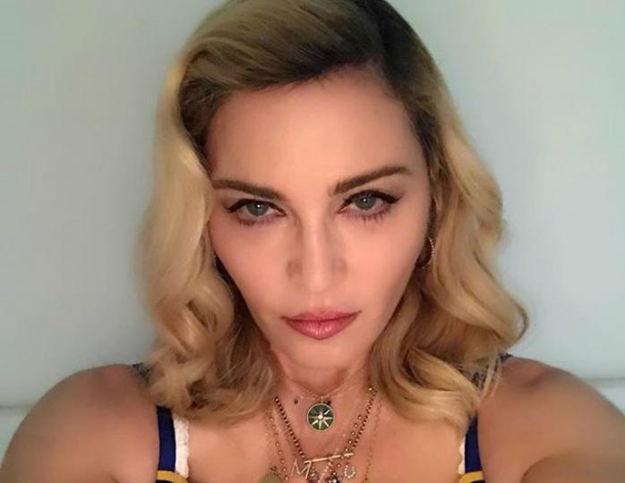 Мадонна ошеломила снимком топлес и на костылях
