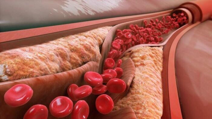 диетолог назвала самые эффективные способы снизить холестерин