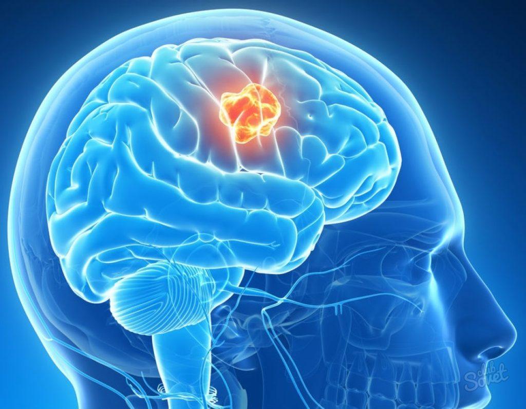 Японские ученые рассказали о продукте для профилактики инсульта